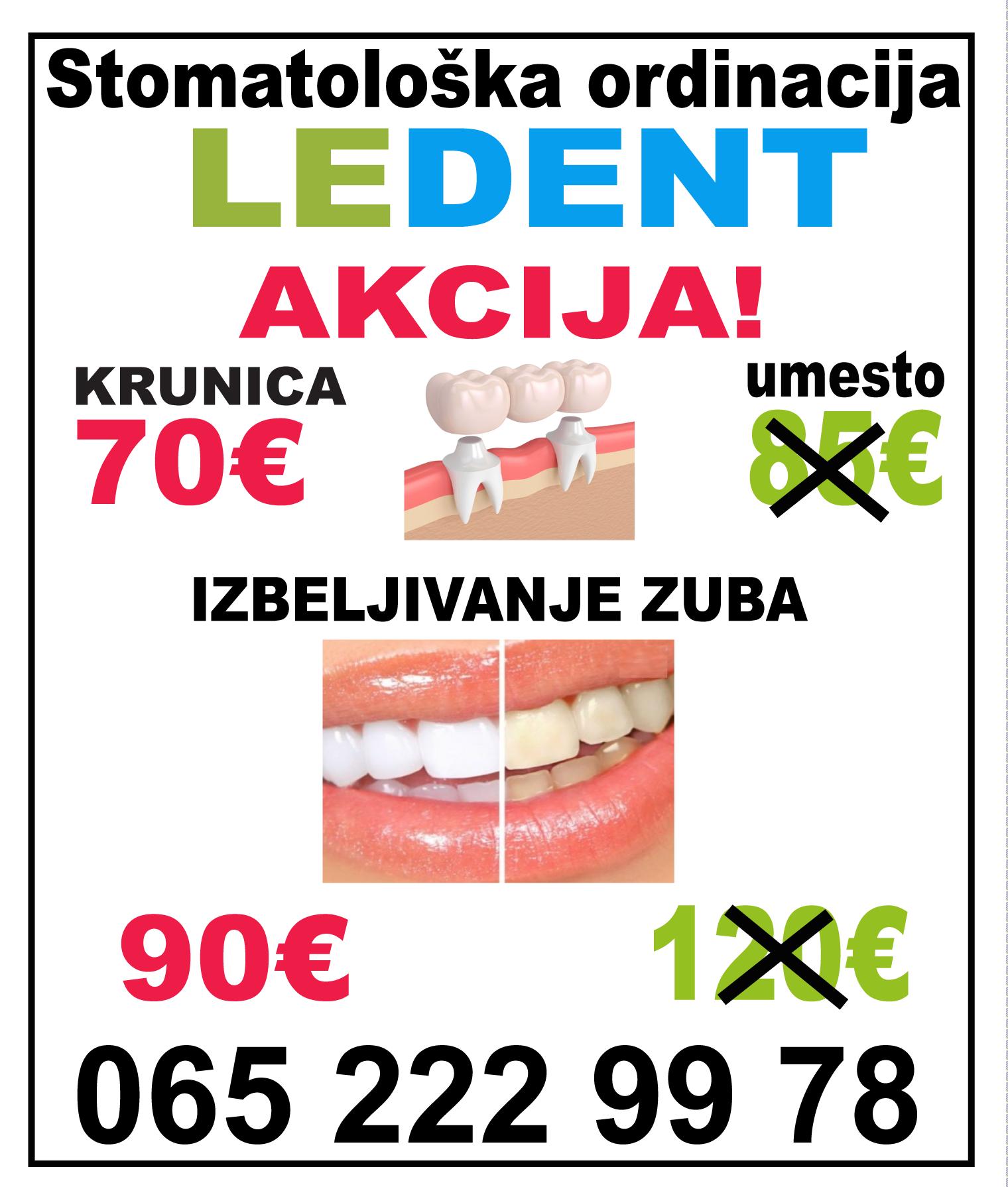 Ledent ledine stomatolog zubar novi beograd surcin vojvodjanska popravka proteza zub implant ugradnja proteze krunica plomba mojabaza1